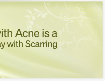Every Day with Acne is a Day with Scarring - Resnik Skin Institute